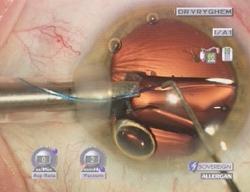 inbrengen van de plooibare lens