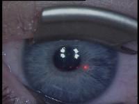 Stap 1. Aanbrengen van de ooglid-sperder