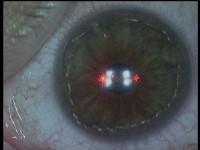 3centreren van laser