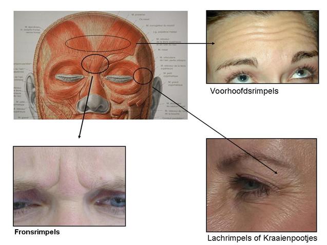 botox traitement pur les rides du visage dr vryghem brussels eye doctors. Black Bedroom Furniture Sets. Home Design Ideas