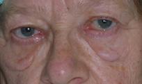 Die Creme von den dunklen Kreisen unter den Augen von den Händen